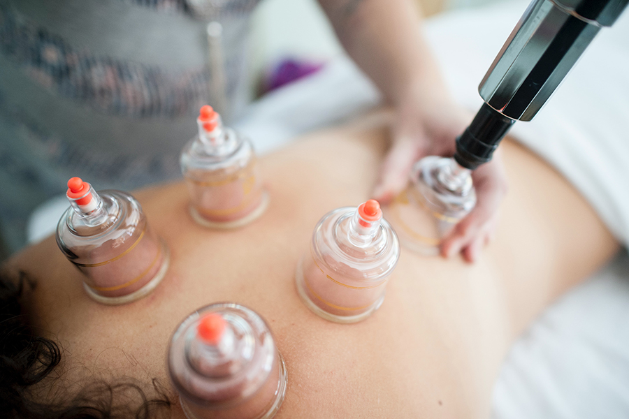 Myofascial Decompression (Cupping) Therapy at Elevate Therapy
